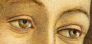 Strabismus (misaligned eyes) of venus