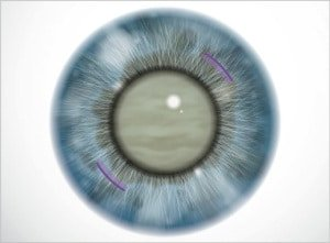 Tagli arcuati per la correzione astigmatismo - Chirurgia della cataratta